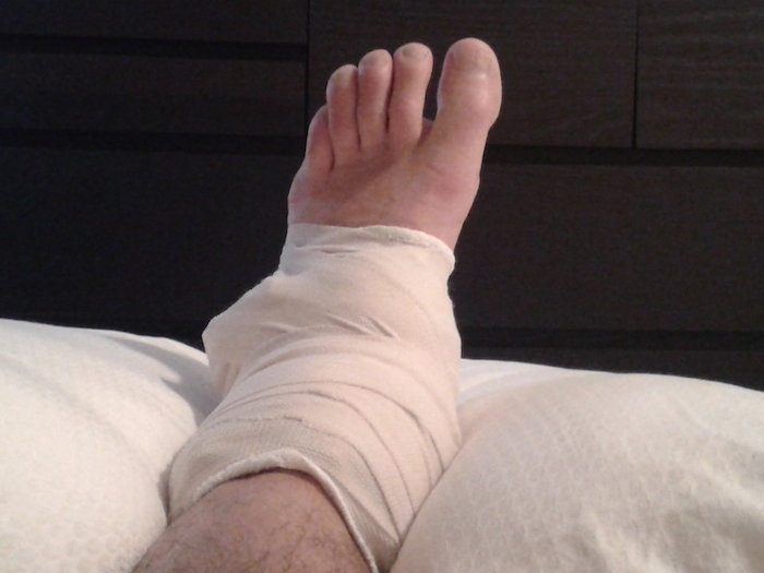 iced-ankle